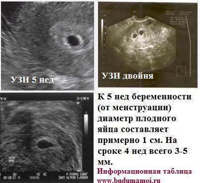 Срок беременности 4-5 недель