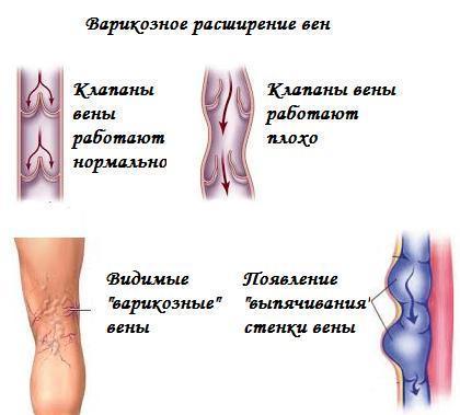 Варикоз и красные пятна на коже ног
